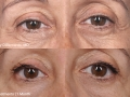 Barry-DiBernardo-MD_Patient1_3Tx_1Mo_42C_5Min-Eye2