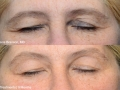 Denis-Branson-MD_Patient1_2TxUpper_3TxLower_9Mo_42C_5Min-Eye_58Yo
