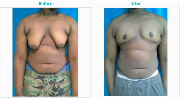 Gynecomastia-Surgery-Before-and-After.pn